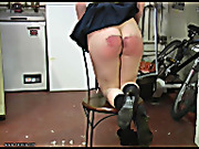 Caned to bloody bruises