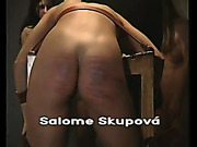 Pink buttocks got black and blue after caning