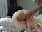 Brutal Paddle Blistered On Vacation